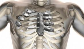 3d printen kanker prothese